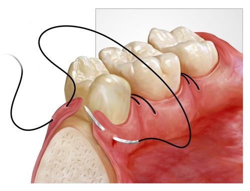 От дренажа в зубе болит