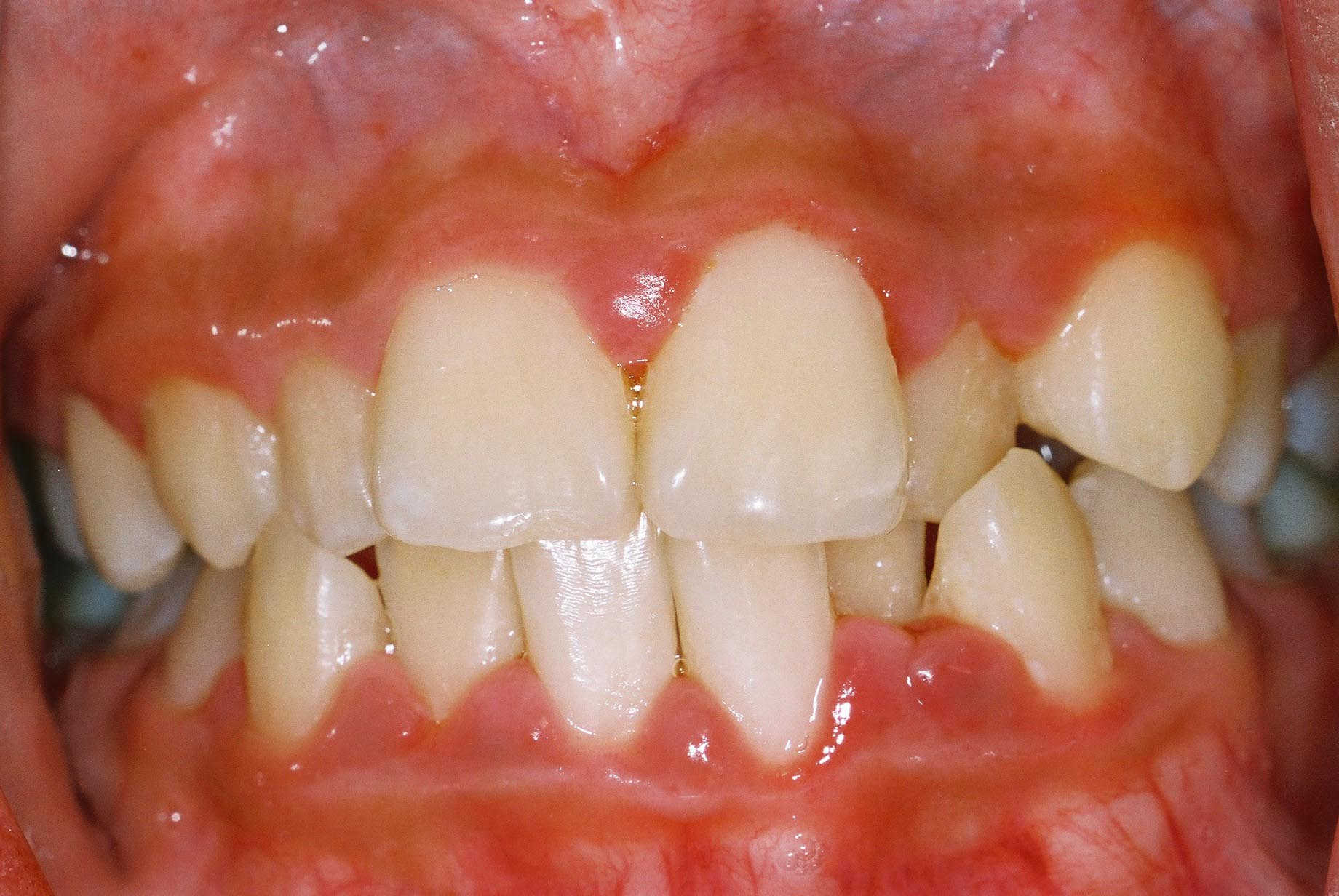 irregular teeth